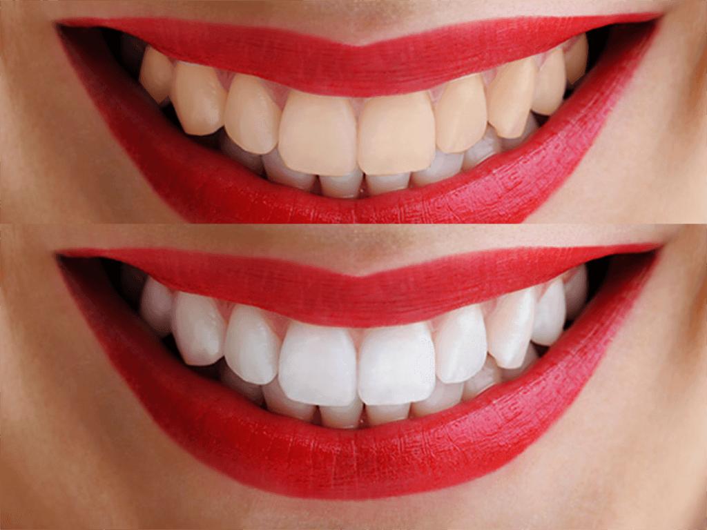 tratamiento dental para blanquear los dientes
